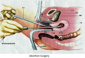 Early Pregnancy Abortion